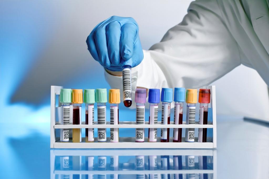 Badania laboratoryjne dla kobiet w ciąży